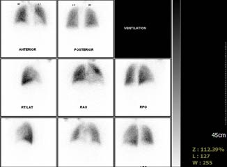 Nuclear Medicine Study of the Lung
